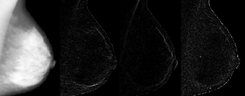 Wavelet decomposition of a mammogram